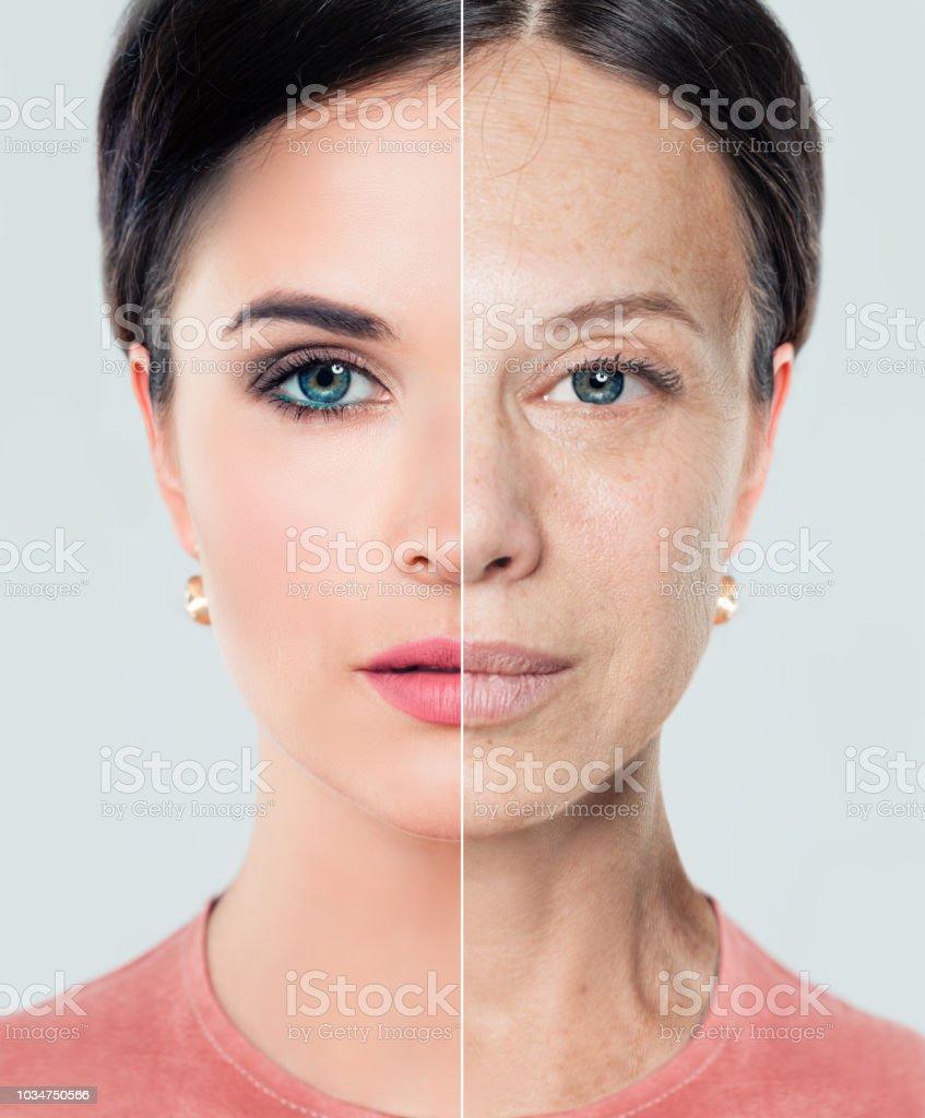 Die Lippen der Frau vor und nach der Lippe Füller InjectionsAging und Jugend-Konzept. Schöne Frau mit Problem und gereinigte Haut, Beauty-Behandlung und heben. Vorher und nachher, Jugend und Alter. Prozess des Alterns und der Verjüngung. Füllstoffe. Li – Foto