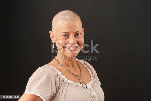 469949126 istock photo Woman losing hair in chemotherapy while fighting cancer 503482606