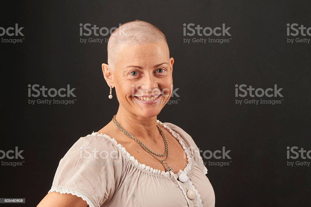 Woman losing hair in chemotherapy while fighting cancer stock photo