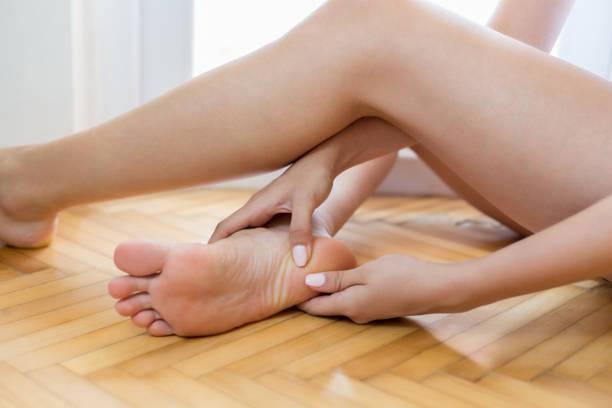 woman massaging her aching foot - callo foto e immagini stock