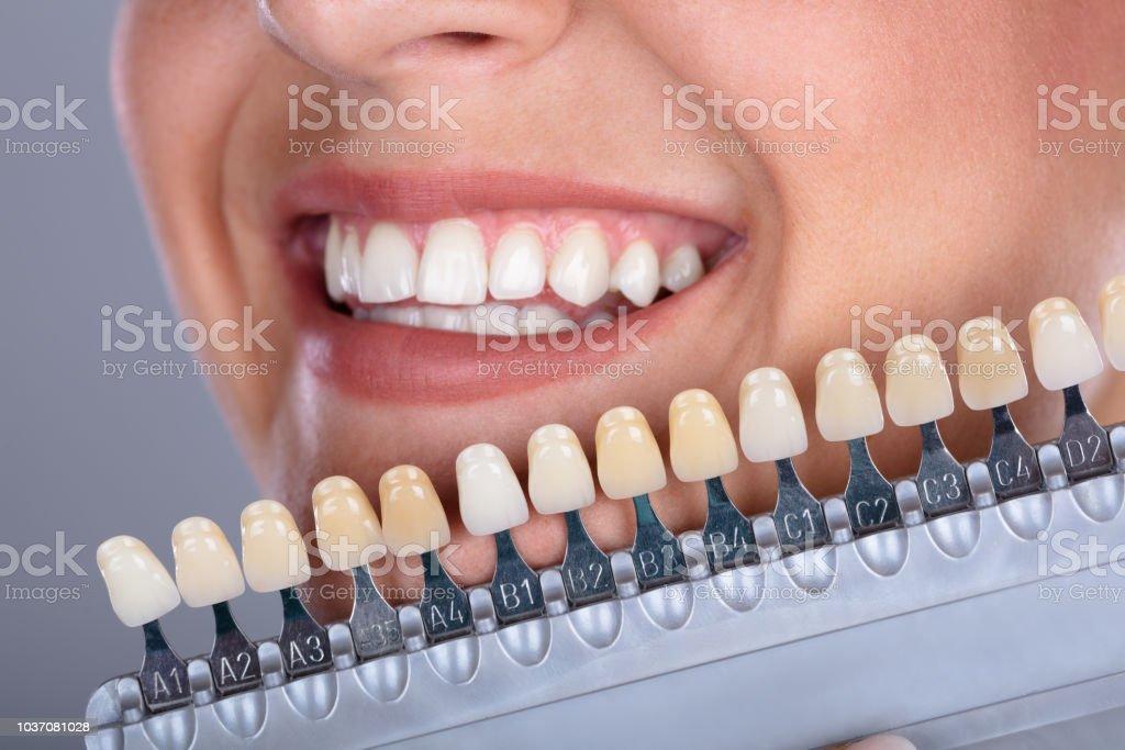 Frau, die passenden Farbton der Zähne Implantat – Foto