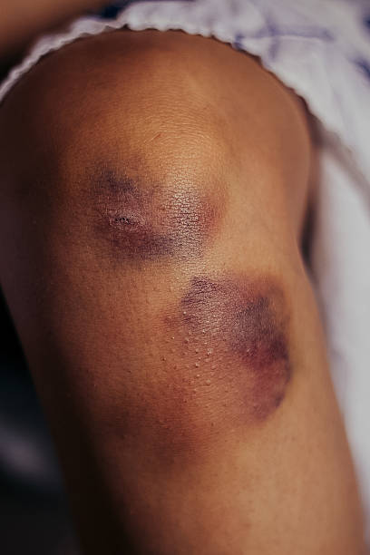 Woman nursing an injured bruised grazed knee with stock photo