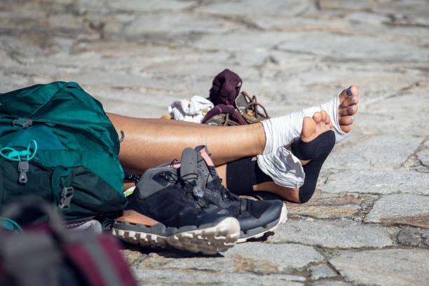Woman pilgrim legs with injured feet resting on Obradoiro square stock photo