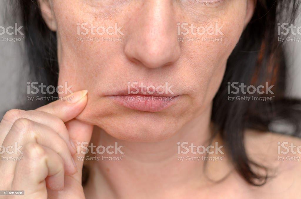 Woman pinching the skin of her cheek stock photo