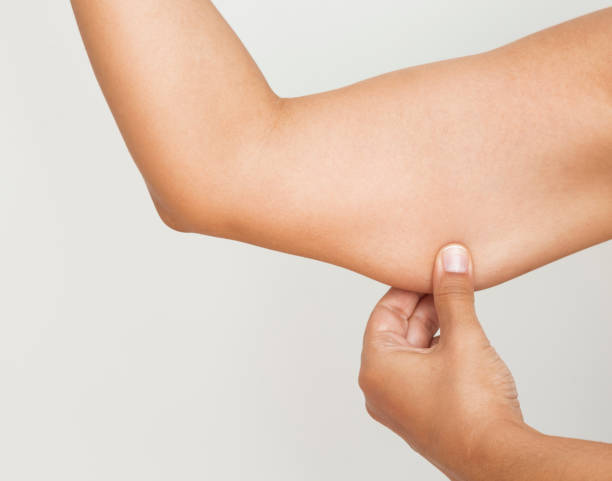 Woman pinching upper arm skin Woman pulling arm, white background. liposuction stock pictures, royalty-free photos & images