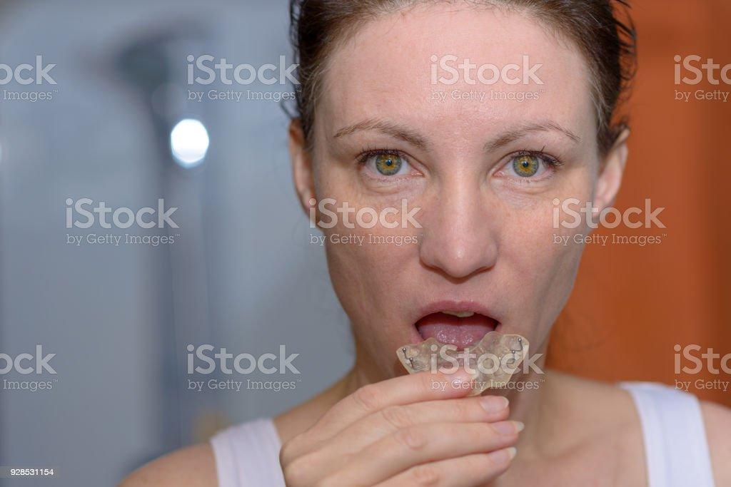 Mulher colocando uma placa de mordida na boca dela - foto de acervo