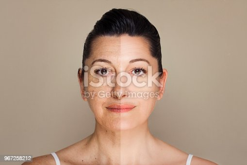 istock Woman portrait before and after anti-aging program 967258212