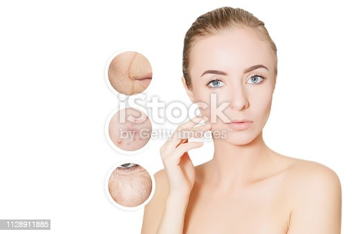 istock woman portrait isolated for design with graphic circles of old and problem skin 1128911885