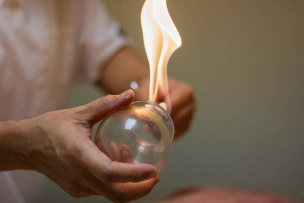 woman preparing glass cup with flame for cupping therapy, a treatment used in traditional chinese medicine (tcm) for pain relief and other health benefits. - chińskie ziołolecznictwo zdjęcia i obrazy z banku zdjęć