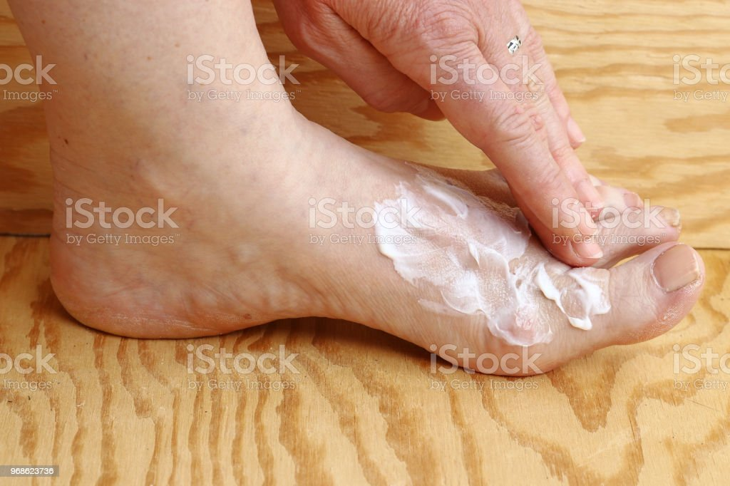 A woman puts some cream on her foot stock photo