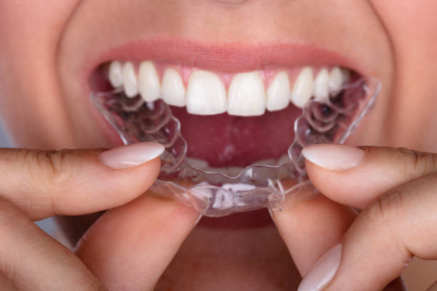 Woman Putting Transparent Aligner In Teeth stock photo