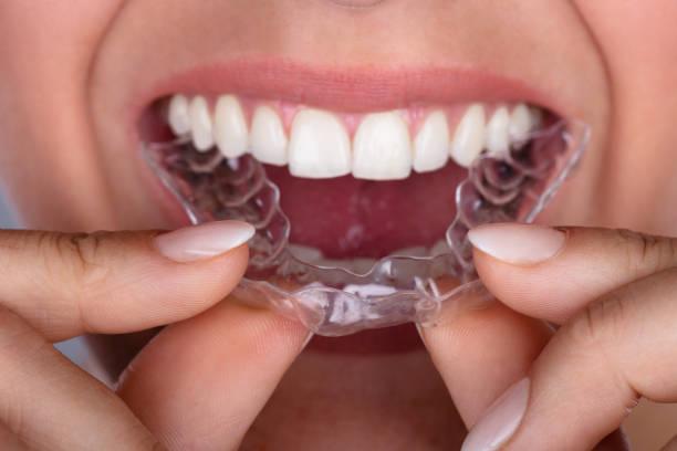 frau weglegen transparenten aligner in zähnen - kieferorthopäde stock-fotos und bilder
