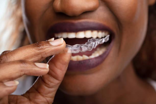 Woman Putting Transparent Aligner In Teeth stock photo