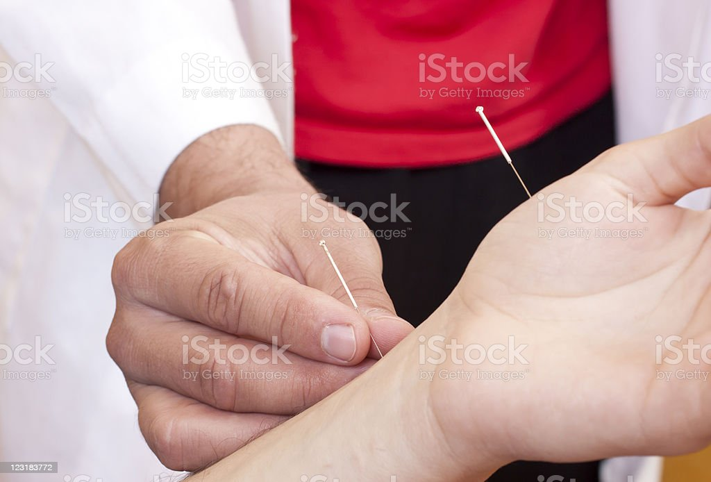 Woman receives acupuncture stock photo