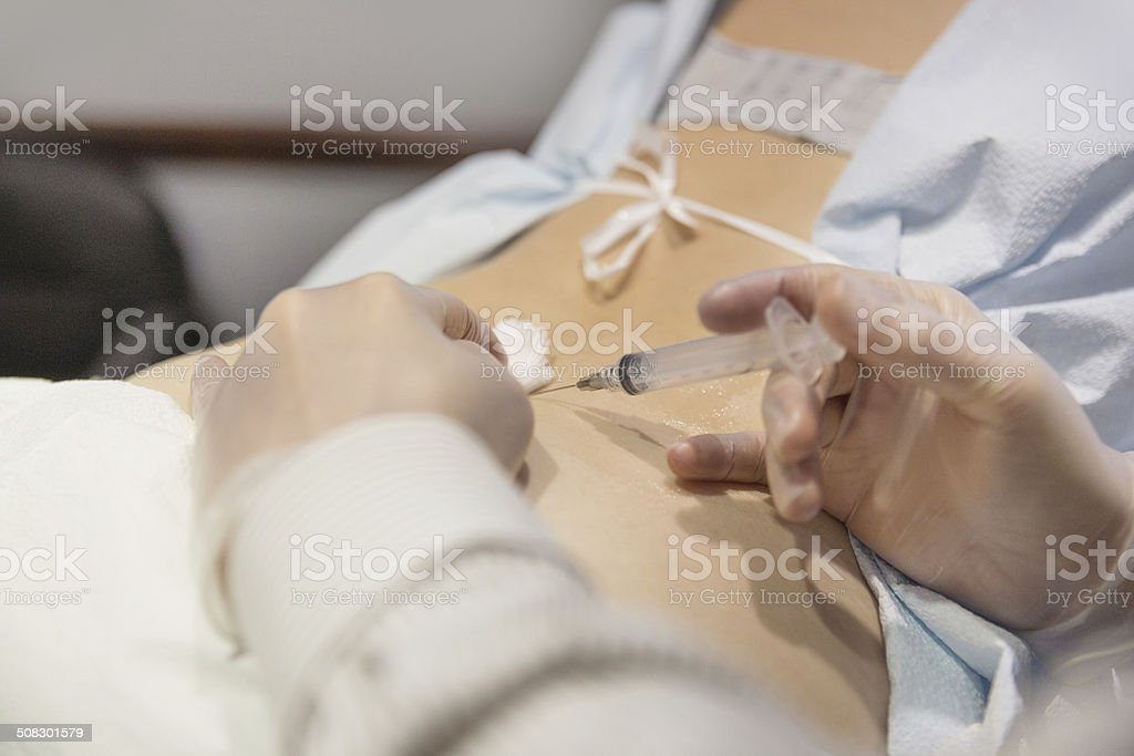 Woman receives cortisone shot in her back stock photo