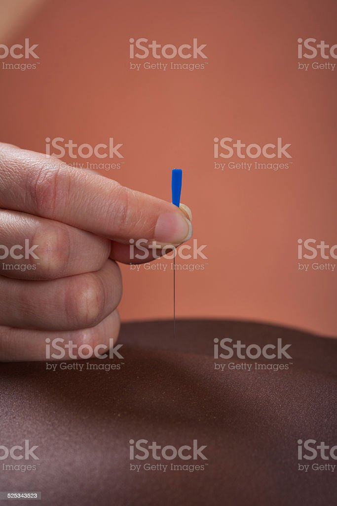 Woman Receiving Acupuncture Treatment At Salon stock photo