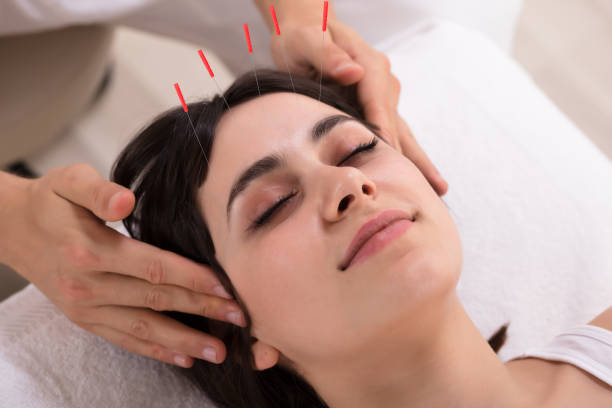 Woman Receiving Acupuncture Treatment stock photo