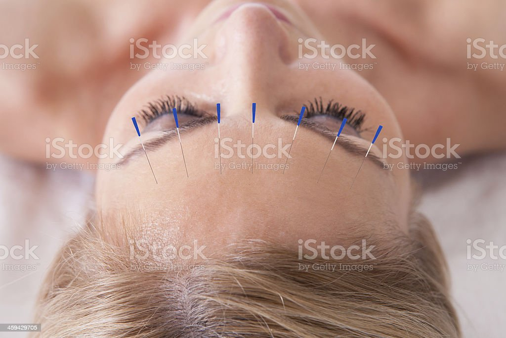 Woman Receiving An Acupuncture Needle Therapy stock photo