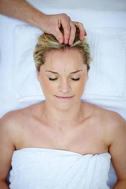 donna riceve un trattamento di agopuntura facciale - china drug foto e immagini stock