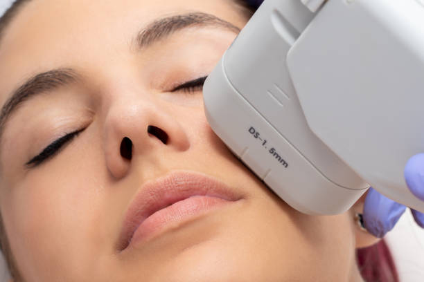 Woman receiving high intensity focused ultrasound treatment on face. stock photo