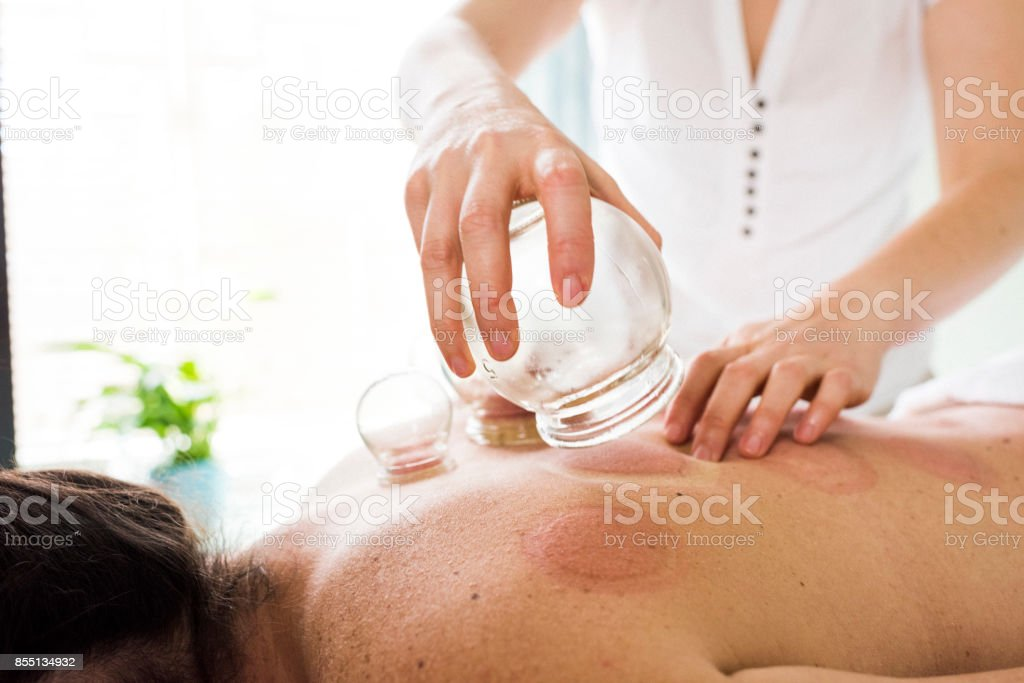Woman removing acupuncture cups from woman's back stock photo