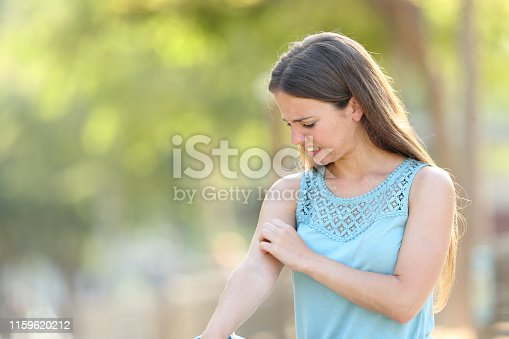 Woman scratching arm because it stings