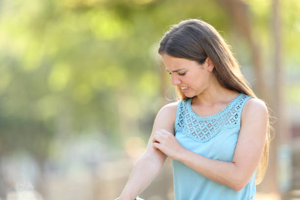 Woman scratching arm because it stings stock photo