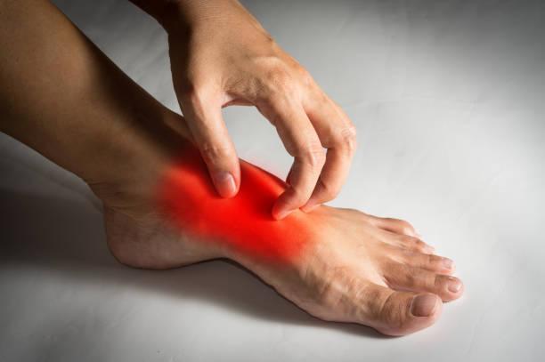 Woman scratching foot skin. stock photo