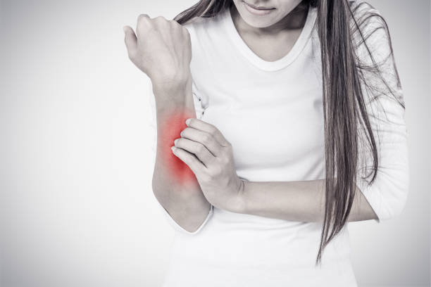 Woman scratching her elbow. Woman scratching her hand on white background. psoriasis stock pictures, royalty-free photos & images