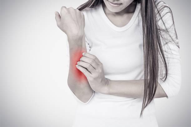 femme se gratter son coude. - psoriasis photos et images de collection