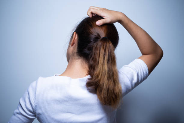 Woman scratching her head Woman scratching her head human scalp stock pictures, royalty-free photos & images