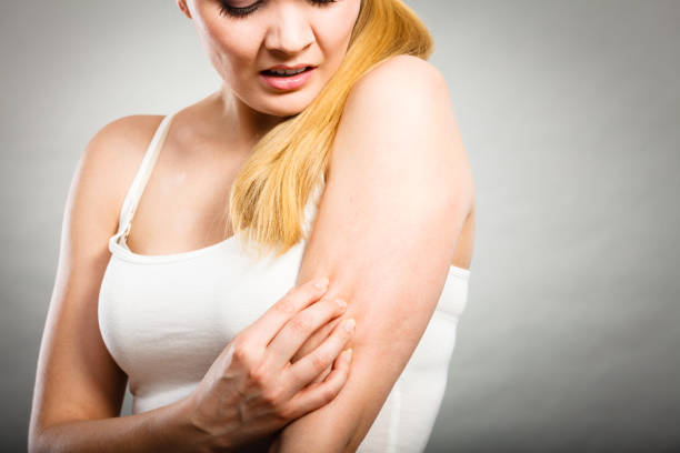 woman scratching her itchy arm with allergy rash - scratching stock photos and pictures