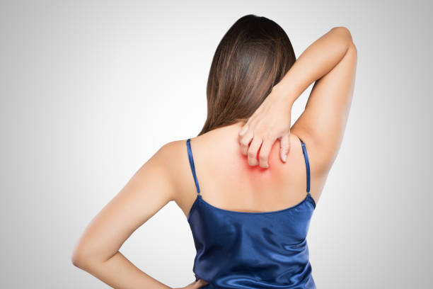 woman scratching her itchy back with allergy rash, concept with healthcare and medicine. - scratching stock photos and pictures
