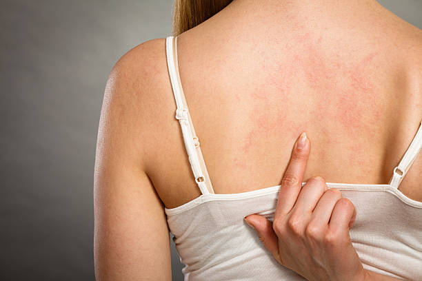 woman scratching her itchy back with allergy rash - human skin stock photos and pictures