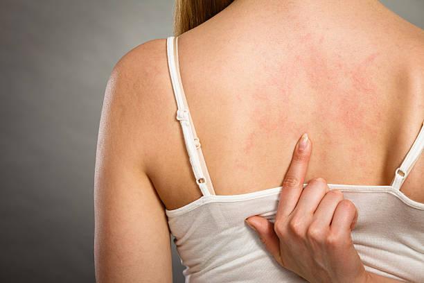 woman scratching her itchy back with allergy rash - menschliche haut stock-fotos und bilder