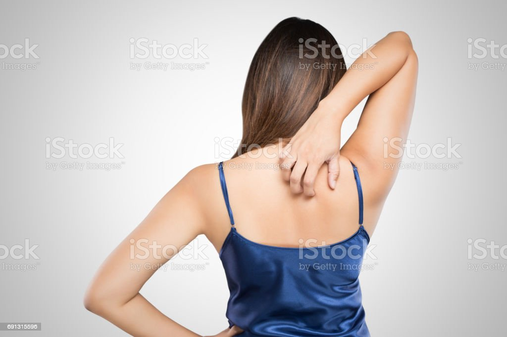 Woman scratching her itchy back with allergy rash, Shoulder, Concept with Healthcare And Medicine. стоковое фото