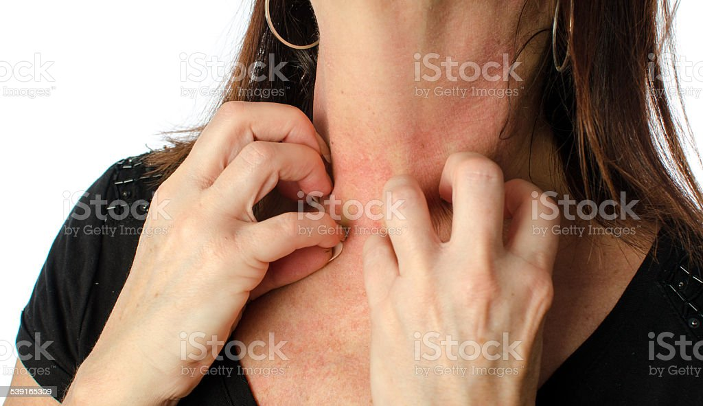 Woman scratching her neck stock photo