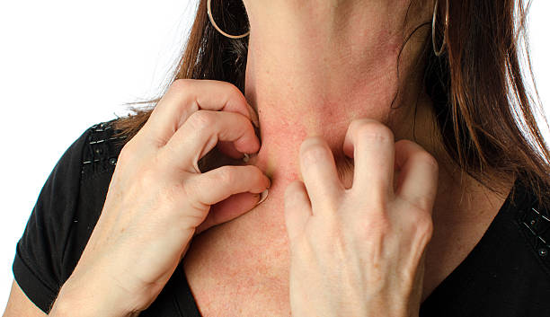 woman scratching her neck - scratching stock photos and pictures