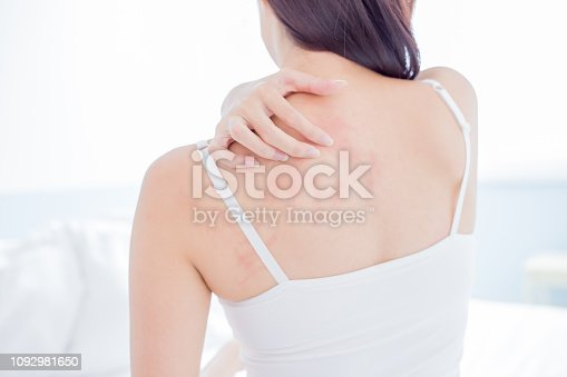 istock woman scratching shoulder and neck 1092981650
