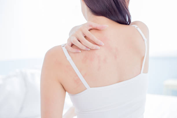 woman scratching shoulder and neck woman scratching her shoulder and neck because of dry skin at home human skin stock pictures, royalty-free photos & images