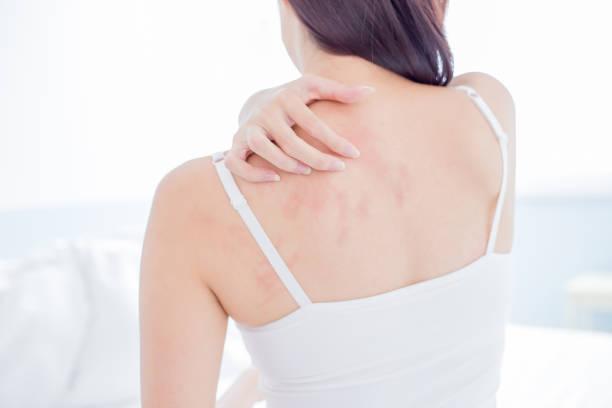 vrouw scratching schouder en nek - menselijke huid stockfoto's en -beelden