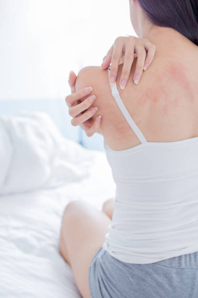 woman scratching shoulder and neck woman scratching her shoulder and neck because of dry skin at home skin condition stock pictures, royalty-free photos & images