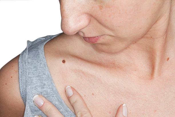 Skin cancer – Foto