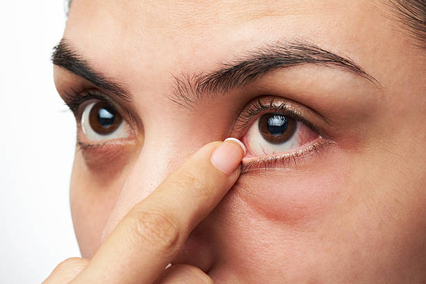 woman show her eye - dry stock photos and pictures