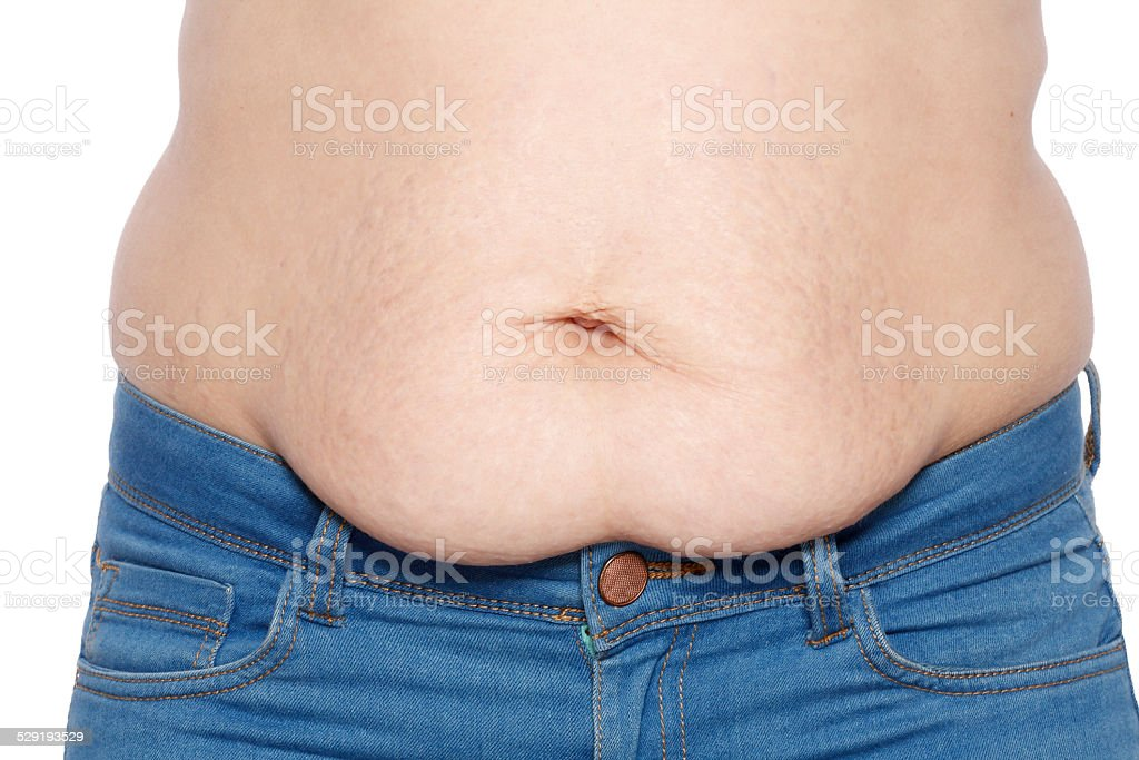 Woman showing her stretch marks and fat stock photo