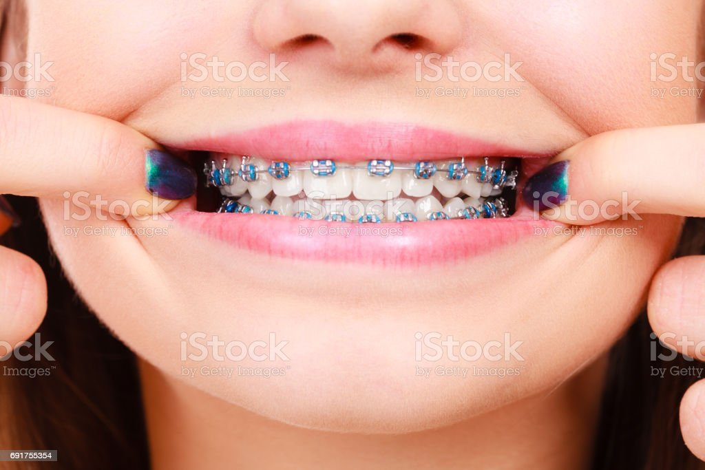 Woman showing her teeth with braces стоковое фото