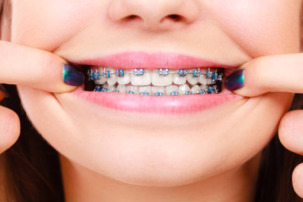 Woman showing her teeth with braces stock photo