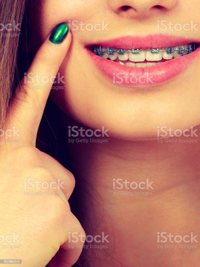 fb9dbc1fa Foto de Mulher Mostrando Os Dentes Com Aparelho e mais fotos de ...