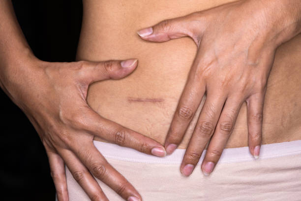 Woman showing on your stomach with a appendicitis scar, Appendicitis scar on the woman stomach. stock photo