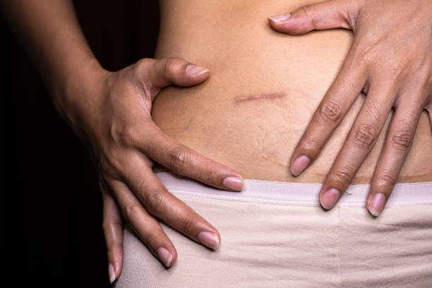 Woman showing on your stomach with a appendicitis scar, Appendicitis scar on the woman stomach. Woman showing on your stomach with a appendicitis scar, Appendicitis scar on the woman stomach. scar stock pictures, royalty-free photos & images